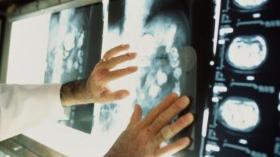 Для обласного онкодиспансера придбають мамограф майже за 12 мільйонів