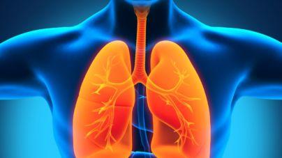 За минулу добу одна людина померла від пневмонії