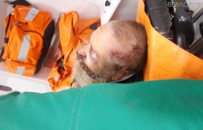 У Житомирі біля вокзалу невідомі побили хасида
