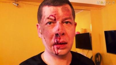 У Бердичеві невідомі побили керівника фракції «Батьківщина» у міській раді