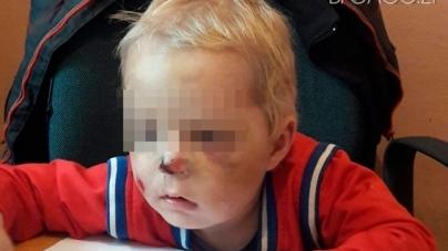 Жах! 2-річного хлопчика побила матір: струс мозку, гематоми, перелом кісток носа