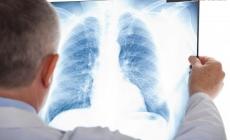 133 жителі області торік померли від туберкульозу