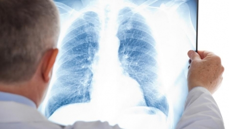 У Коростені за майже 200 тисяч придбають переносний рентген