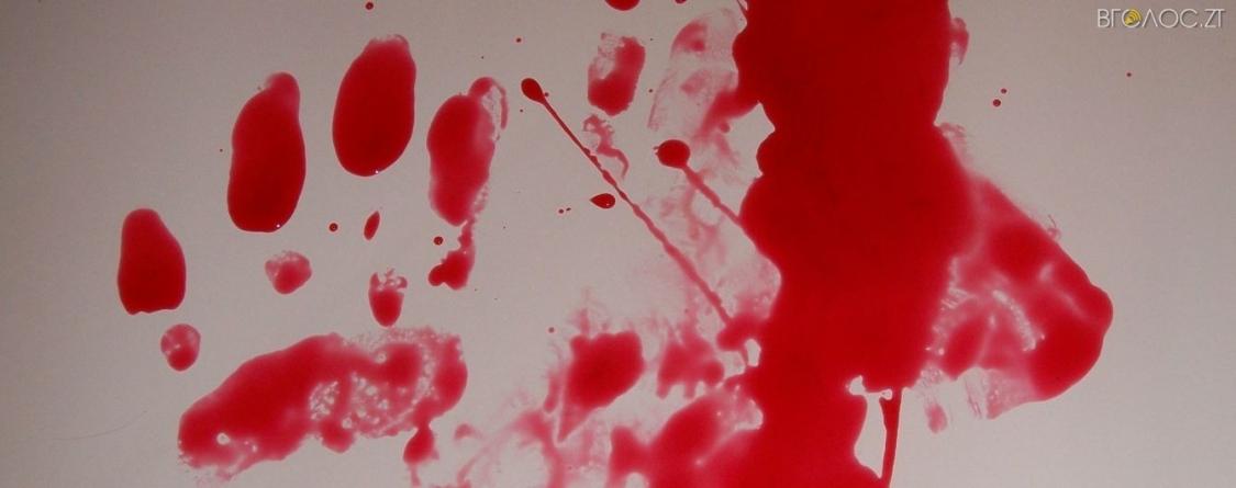 Поножовщина: селянин порізав 4 чоловіків. Один із них помер, інші – у лікарні