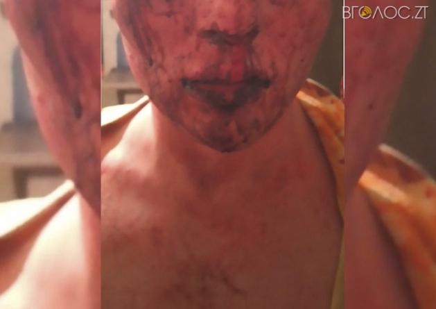 На околиці Житомира побили 19-річного хлопця, який прийшов на побачення у жіночому одязі