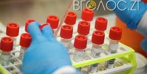 Житомирщина: за добу виявили 27інфікованих COVID-19