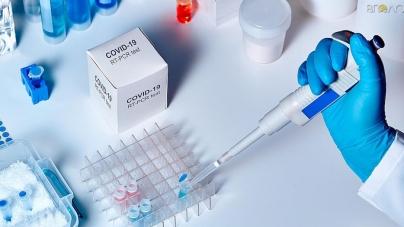 Житомирський міськвиконком  встановить вартість ПЛР-аналізу на COVID-19