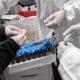COVID-19: на Житомирщині за добу померли 10 інфікованих