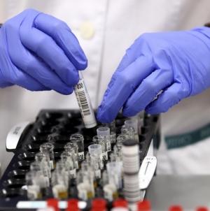 Житомирщина: 228 нових підтверджених випадків COVID-19 за добу