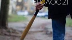 Битою по голові: 16-річного селянина, який побив військового, взяли під цілодобовий домашній арешт