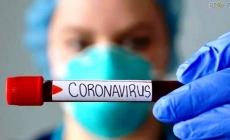За минулу добу зареєстрували 17 нових лабораторно підтверджених випадків COVID-19 на Житомирщині