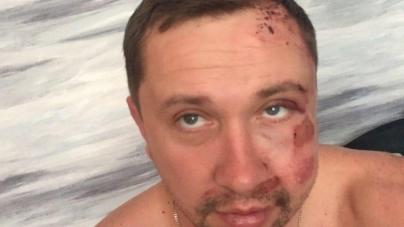 У Житомирі невідомі побили власника газети «20 хвилин» Олександра Васильковського